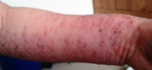 MyItchyBoy's bad eczema
