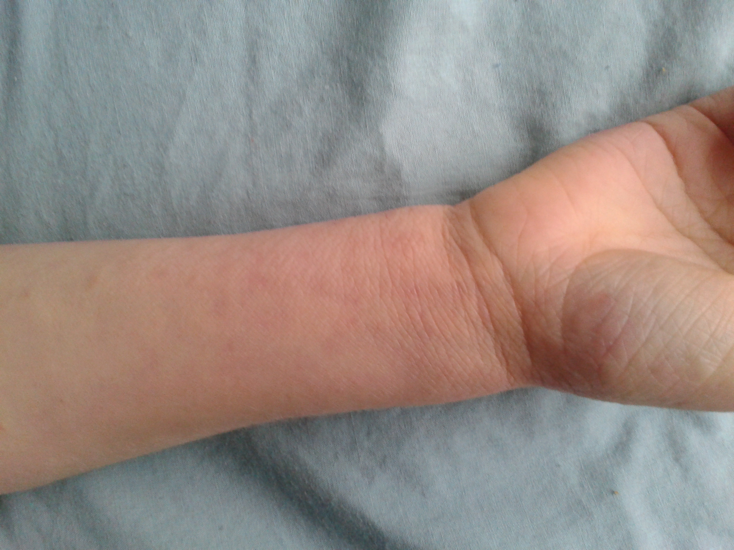 Eczema: Finally some true respite!