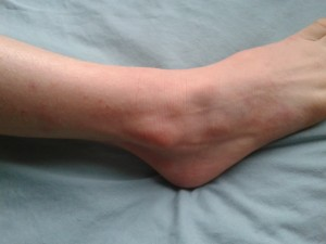 Ankle after using Dr Aron cream. Jan 2015