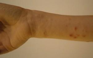 Wrist before using Dr Aron cream Nov 2014